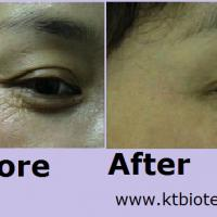 Large picture EGF clinical pic ( anti aging repairing )